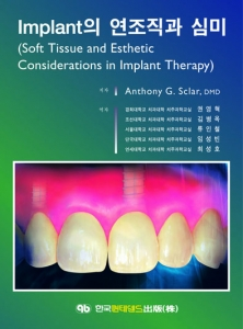 Implant의 연조직과 심미(Soft Tissue and Esthetic Considerations in Implant Therapy)